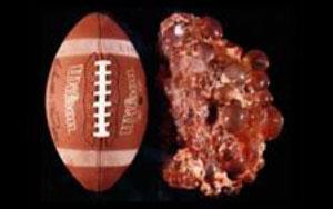 enfermedad poliquistica renal y hepatica seram