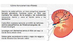 causas del rinon dilatado
