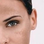 Debido a las hormonas puedes observar el obscurecimiento de algunas regiones del cuerpo