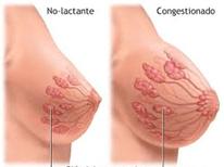 En el 4ª mes de embarazo, los pechos y las glándulas productoras de leche dentro de ellos, continúan  creciendo debido a la estimulación de la progesterona y los estrógenos