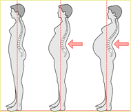 En la columna vertebral aparecen  las modificaciones posturales a la altura de la zona lumbar