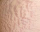 En algunas mujeres pueden aparecer las primeras estrías en el abdomen y  en los senos