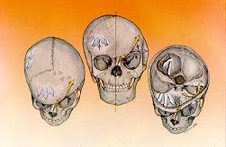 La forma posicional es la causa más común de plagiocefalia