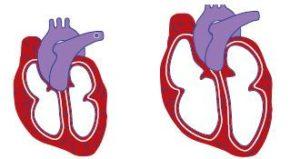 el corazón de las personas afectadas también puede dilatarse y agrandarse sin cumplir bien la función de recibir y enviar la sangre al organismo.