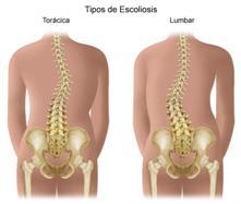 La escoliosis también puede aparecer después, cuando ya es prácticamente imposible caminar