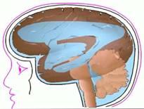 Nuestro cuerpo produce aproximadamente medio litro de líquido cefalorraquídeo diariamente, el cual es continuo y simultáneamente elaborado y absorbido