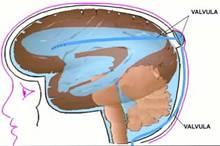 Una derivación (o válvula) es un tubo silástico (material especial) flexible pero robusto. Un sistema de derivación consta de tres partes: el tubo, un catéter y una válvula