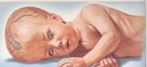 En los bebés, el signo más obvio de la Hidrocefalia es el rápido crecimiento de la circunferencia de la cabeza o una cabeza demasiado grande y las fontanelas se verán abombadas aún cuando el bebé este en posición vertical
