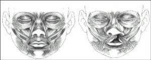 El Labio y Paladar Hendido son defectos al nacimiento en los cuales los tejidos de la boca: (labio, músculos, encía y cubierta interna de la boca (mucosa) no se unen de manera adecuada durante las primeras etapas del embarazo, precisamente entre la 6a y 8a semanas del desarrollo fetal (gestación)