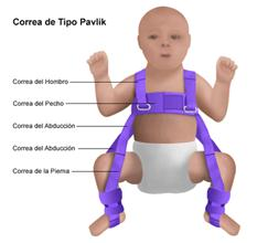 En el niño menor de 12 meses el tratamiento es ortopédico. Se usa un método funcional dinámico, que básicamente es la correa de Pavlic, aparato que flexiona caderas y rodillas en forma progresiva