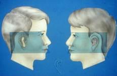 Para que la reconstrucción sea simétrica, es importante que el cirujano haga una estimación exacta de la ubicación de la oreja contraria.