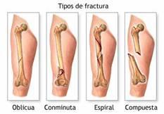 Fractura de los huesos por fragilidad ósea.