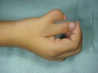 Cuando un dedo se duplica, generalmente cada uno de esos dedos son más pequeños que lo normal y es muy común que los dedos extras se angulen hacia los lados.