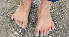 Polidactilia del meñique ó postaxial: polidactilia en el borde de la mano del lado del hueso cúbito del brazo o peroneo del pie.