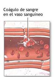 Las plaquetas o trombocitos: son pequeñas células de la sangre que ayudan a la sangre a coagularse y se adhieren a los vasos sanguíneos que se hayan dañado (por heridas o por traumatismos), para detener el sangrado.