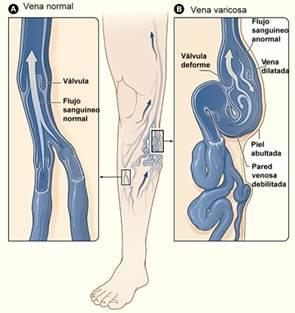 Durante área el venas pélvica embarazo varicosas el en
