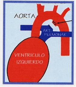 El objetivo del tratamiento quirúrgico, es reparar el conducto arterial y evitar que los pulmones se dañen por la sobrecarga de volumen.