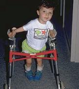 El fisioterapista te ayudará a elegir el mejor aparato para el niño