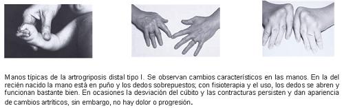 Artrogriposis Distal