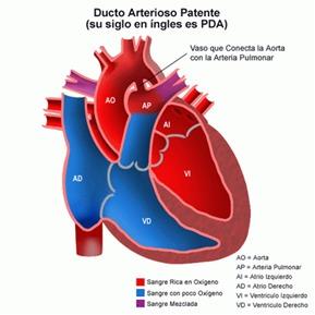 A mayor tamaño del conducto, mayor cantidad de sangre que pasa al pulmón, mayor presión y sobrecarga pulmonar y del corazón ¿Cuánto tiempo podrán resistir estos dos importantes órganos ésta sobrecarga? Todo dependerá de que se haga un diagnóstico y tratamiento oportuno.