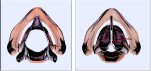 Las cuerdas vocales: La laringe contiene también a las cuerdas vocales y permite el mecanismo de la fonación diseñado específicamente para la producción de la voz