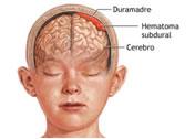 resencia de masas, colecciones, malformaciones de los vasos sanguíneos dentro del cerebro, y otros correspondiendoa las lesiones que ocupan el espacio dentro del cerebrocomo pueden ser los derrames sanguíneos