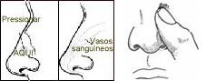 ¿Cómo detener un sangrado nasal?