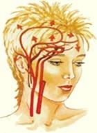 Dolor de cabeza ardiente en la parte superior de la cabeza
