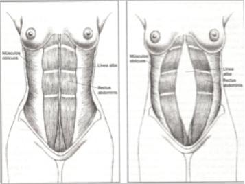 Duele los riñones y da en el vientre a la mujer y es hinchado el vientre
