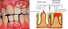 Cuando la gingivitis no es atendida a tiempo, puede desencadenarse La Enfermedad Periodontal, que es la inflamación e infección de las encías y de las estructuras que sostienen al diente.