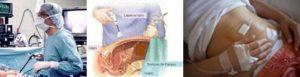 La endometriosis solo puede diagnosticarse por medio de una laparoscopía