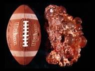 En una PKD completamente desarrollada, un riñón lleno de quistes puede llegar a pesar hasta 10 kilogramos.