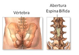 """La Espina bífida, que literalmente significa """"columna hendida,"""" ocurre cuando una o más vértebras de la columna no terminan de cerrase  en su parte posterior"""