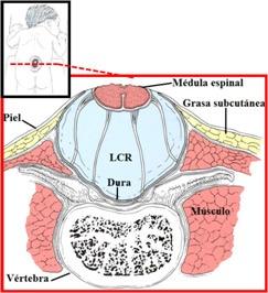 Es necesaria una intervención quirúrgica, en los primeros días de vida, ya que estos niños presentan serios daños al nacer. Es el caso más común de Espina Bífida.