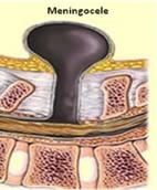 El meningocele es un defecto que se manifiesta como una pequeña bolsa CON líquido en su interior (quiste) que sobresale a través del defecto de la columna vertebral.
