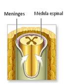 Como resultado de este defecto, la médula espinal, las meninges (la cubierta protectora alrededor del cerebro y la médula espinal) y  las raíces nerviosas,  quedan sin la protección ósea