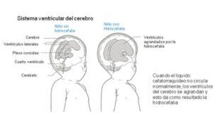 La mayoría de las personas con espina bífida tendrán diferencias en el desarrollo del cerebro en sí. En las personas con espina bífida el cerebro generalmente está ubicado más abajo de lo que debería estar, hacia la parte superior de la columna vertebral.