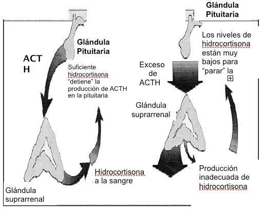 hiperplasia suprarrenal congenita no clasica