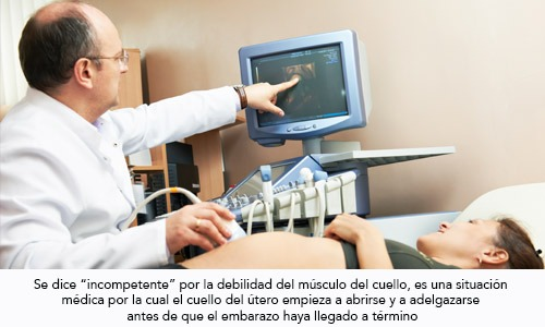 Incompetencia istmico cervical: cuello incompetente