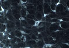 Existen cerca de 100 billones de células nerviosas en un ser humano, este número se alcanza en los primeros cinco meses de embarazo. Así que podemos hablar de cerca de cuatrillones de sinapsis o conexiones en el cerebro de un bebé y cada una de ellas puede ser alterada por las experiencias que tenga