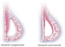 ¿Qué importancia tiene la forma en la que me pusieron los implantes?