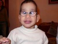 Todos los niños tienen una visión disminuida y la corrección nunca es mayor de 20/100 y es muy probable que esto sea causa de un nistagmus (movimiento incontrolado y rápido de los ojos) que se desarrolla desde muy temprano en la vida.