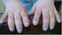 Las personas con FQ a menudo presentan en manos y pies, una malformación denominada dedos en palillo de tambor, la cual se debe a los efectos de esta enfermedad crónica y a la hipoxia