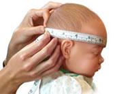 Es la medida del contorno de la cabeza en su parte más grande, ubicado sobre las orejas y cejas. Se mide utilizando una cinta métrica.
