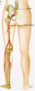 El nervio ciático es el nervio más largo de nuestro cuerpo
