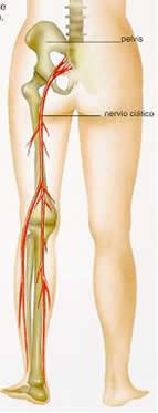 dolor en el nervio ciatico pierna izquierda