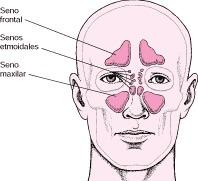 Sangrado de la nariz y sus síntomas