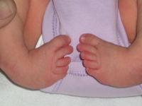El pie rota hacia adentro o hacia abajo al momento del nacimiento, resistiéndose al realineamiento (a tomar su posición normal).