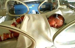 Gracias a los muchos avances recientes, más del 90% de los bebés prematuros que pesan 800 g o más sobreviven. Los que pesan más de 500 g tienen entre el 40% y el 50% de probabilidades de sobrevivir, aunque las probabilidades de que sufran complicaciones son mayores.