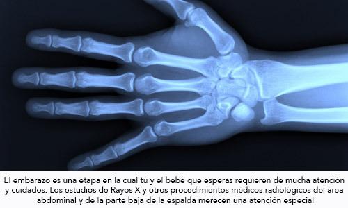 Estudios de Rayos X durante el embarazo